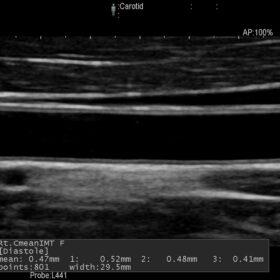 Dormed Hellas AR60 - Vascular Auto IMT