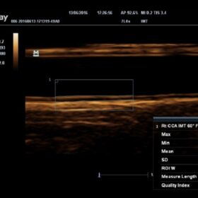 Dormed Hellas M6 - Carotid-IMT