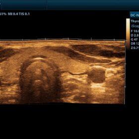 Dormed Hellas DC-N2 - Thyroid iScape