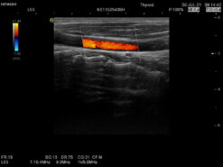 Dormed Hellas Hitachi EUP-L53_6 Vascular Linear