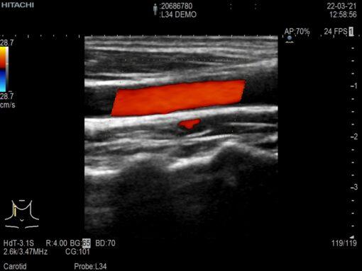 Dormed Hellas L34_6 Vascular
