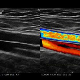 Dormed Hellas AR50 - Vascular