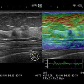 Dormed Hellas 65 Ultrasound