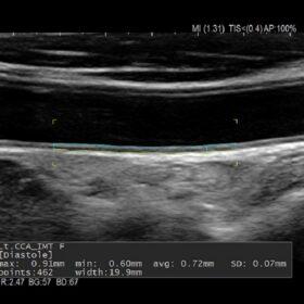 Dormed Hellas AR65 - Vascular Carotid A-IMT