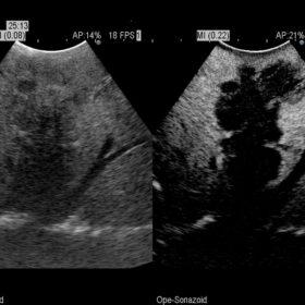 Dormed Hellas AR70 - Intraoperative contrast of a large liver metastasis
