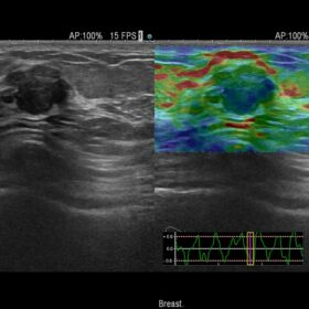 Dormed Hellas AR70 - RTE - benign breast lesion