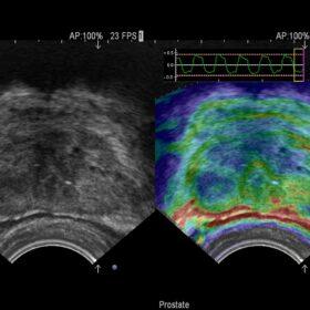 Dormed Hellas AR70 - Urology Elasto