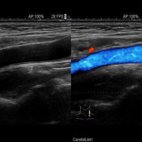 Dormed Hellas AR70 - Vascular