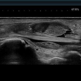 Dormed Hellas AR750 - Wrist synovial proliferations due to trauma