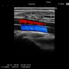 Dormed Hellas Ascendus - Vascular