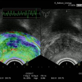 Dormed Hellas Avius - Elasto Urology
