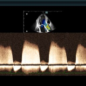 Dormed Hellas 880 Ultrasound - CW Doppler Aortic Regurgitation