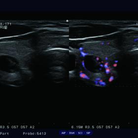 Dormed Hellas Ultrasound