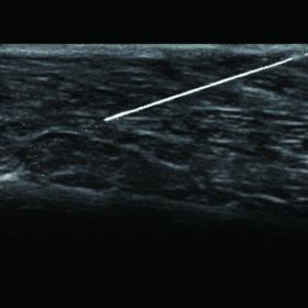 Dormed Hellas F37 - Needle Emphasis