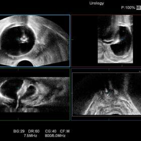 Dormed Hellas Noblus - Urology Bi-plane 3D