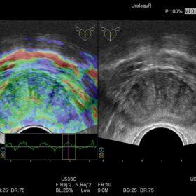 Dormed Hellas Preirus - Elasto Urology