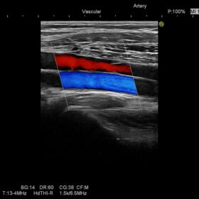 Dormed Hellas Preirus - Vascular Leg
