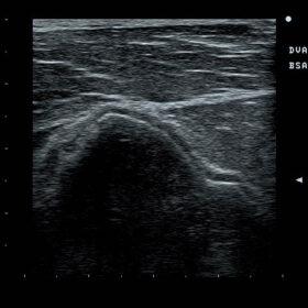 Dormed Hellas Prosound 6 - Msk