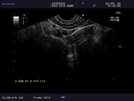 Dormed Hellas Aloka ASU-1012_5 3D/4D Vaginal