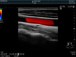 Dormed Hellas L64_6 Linear Vascular